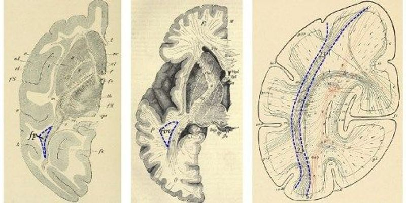 Brain Structure Rediscovered