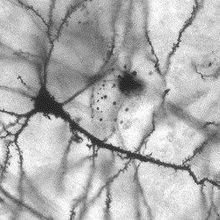 Neurons Regenerate in Rat Spinal Cord