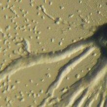 Cellular Chemotaxis