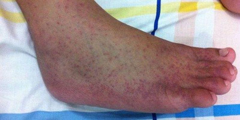 Chikungunya Transmission in France