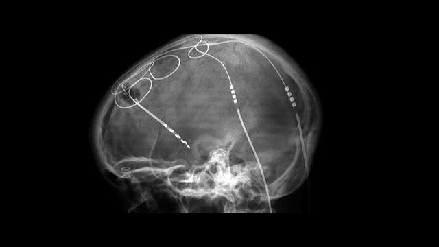 X-ray showing DBS electrodes in skull