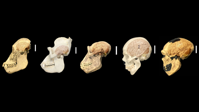 Human-Specific Genes Implicated in Brain Size | The Scientist Magazine®