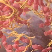 FDA Gives Nod to Melanoma Drug