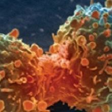 Flipped Fat-burning Linked to Cancer Cachexia