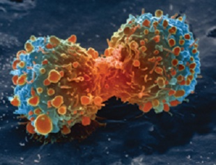 Flipped Fat-burning Linked to Cancer Cachexia   The Scientist Magazine®