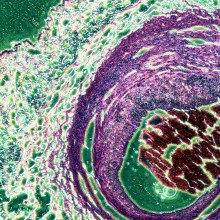 Stem Cells for Autism?
