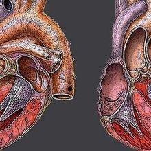 Diseased Heart Chip