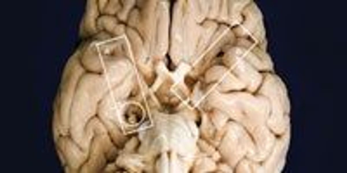 H M 's Brain, 1953–Present | The Scientist Magazine®