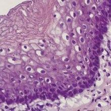 Rats Receive Lab-Grown Esophagi