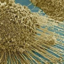 Autophagy Revives Dying Cancer Cells