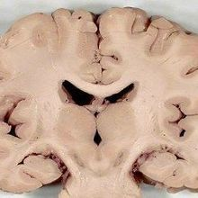 Neuronal Disorganization in Autism