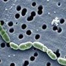 A Wine Bacterium's Proteome