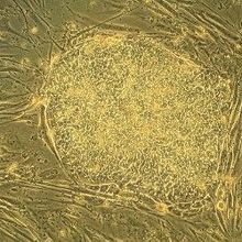 Stem Cell Lines Not Fit for Clinic