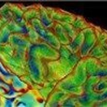 NIH Calls for BRAIN Proposals