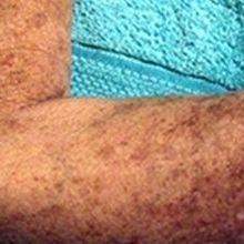 A Cancer Culprit in Autoimmunity