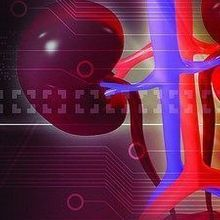 Opinion: I Want My Kidney