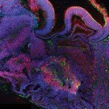 Lab-Grown Model Brains