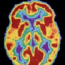 A Blood Test for Alzheimer's?