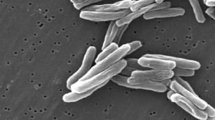 Vitamin C Slays TB Bacteria | The Scientist Magazine®