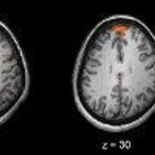 Bad Stats Plague Neuroscience