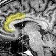 Brain Activity Predicts Re-arrest