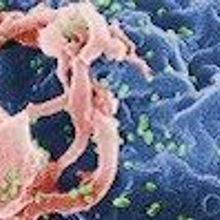HIV Remission for 14 Patients