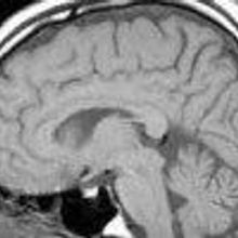 Obama to Back Brain Mapping