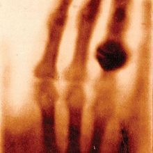 The First X-ray, 1895