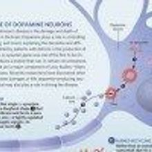 Death or Damage of Dopamine Neurons