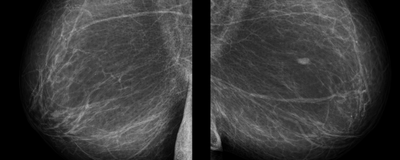 Debate Continues over Withdrawn Mammography Paper