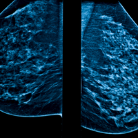 Mammography Article Withdrawal Sparks Dispute