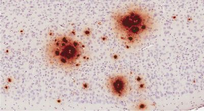 Herpes Viruses Implicated in Alzheimer's Disease