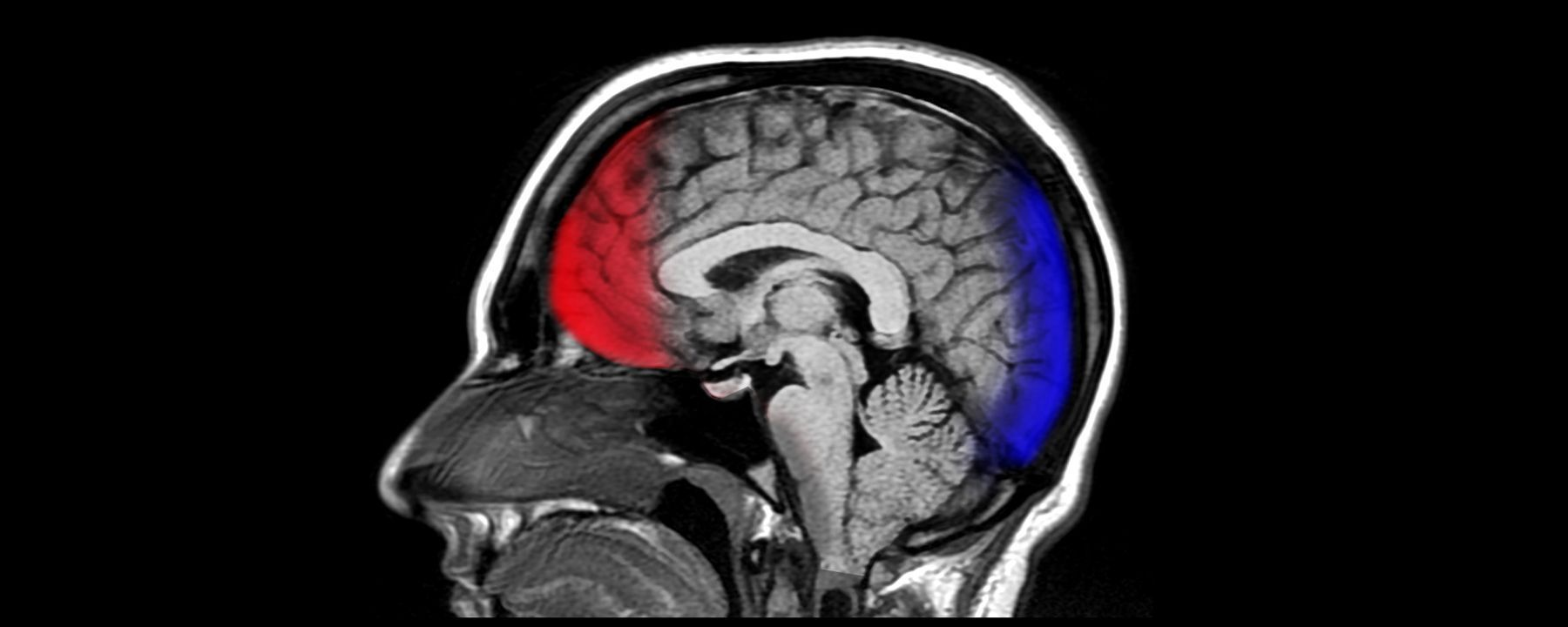 Exosomes in Blood Indicate Mild TBI: Study