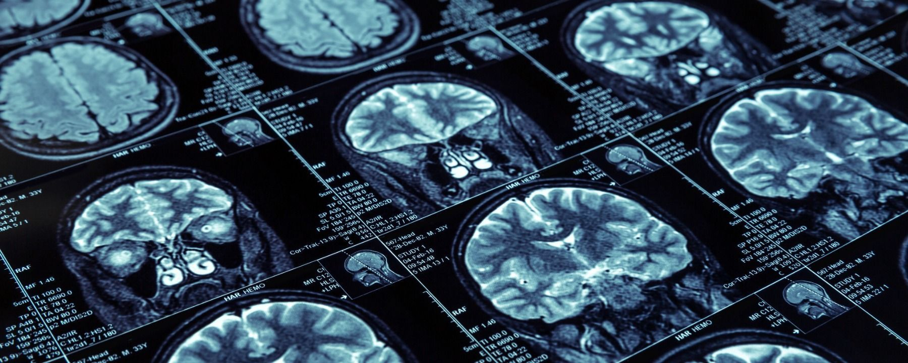 Opinion: No, AI Will Not Replace Radiologists