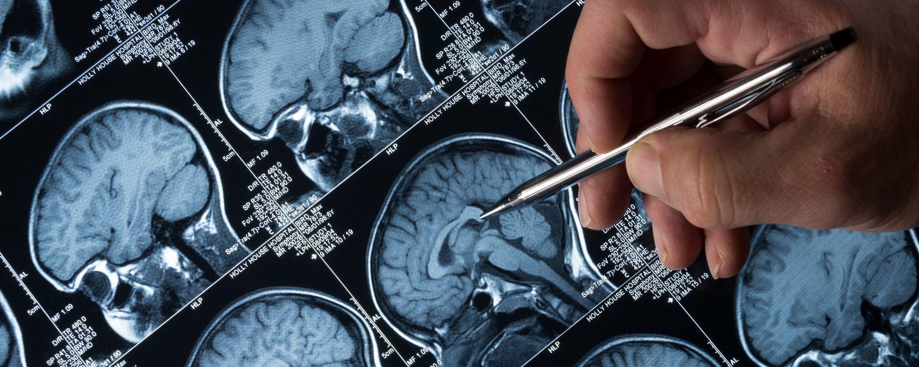 Ultrasound Opens Blood-Brain Barrier in Alzheimer's Patients