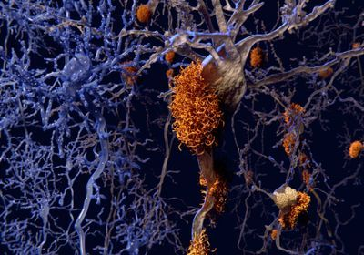Alzheimer's Drug Slows Symptoms, Reduces Plaques