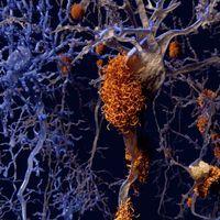 Alzheimer's Drug Slows Symptoms, Reduces Plaques