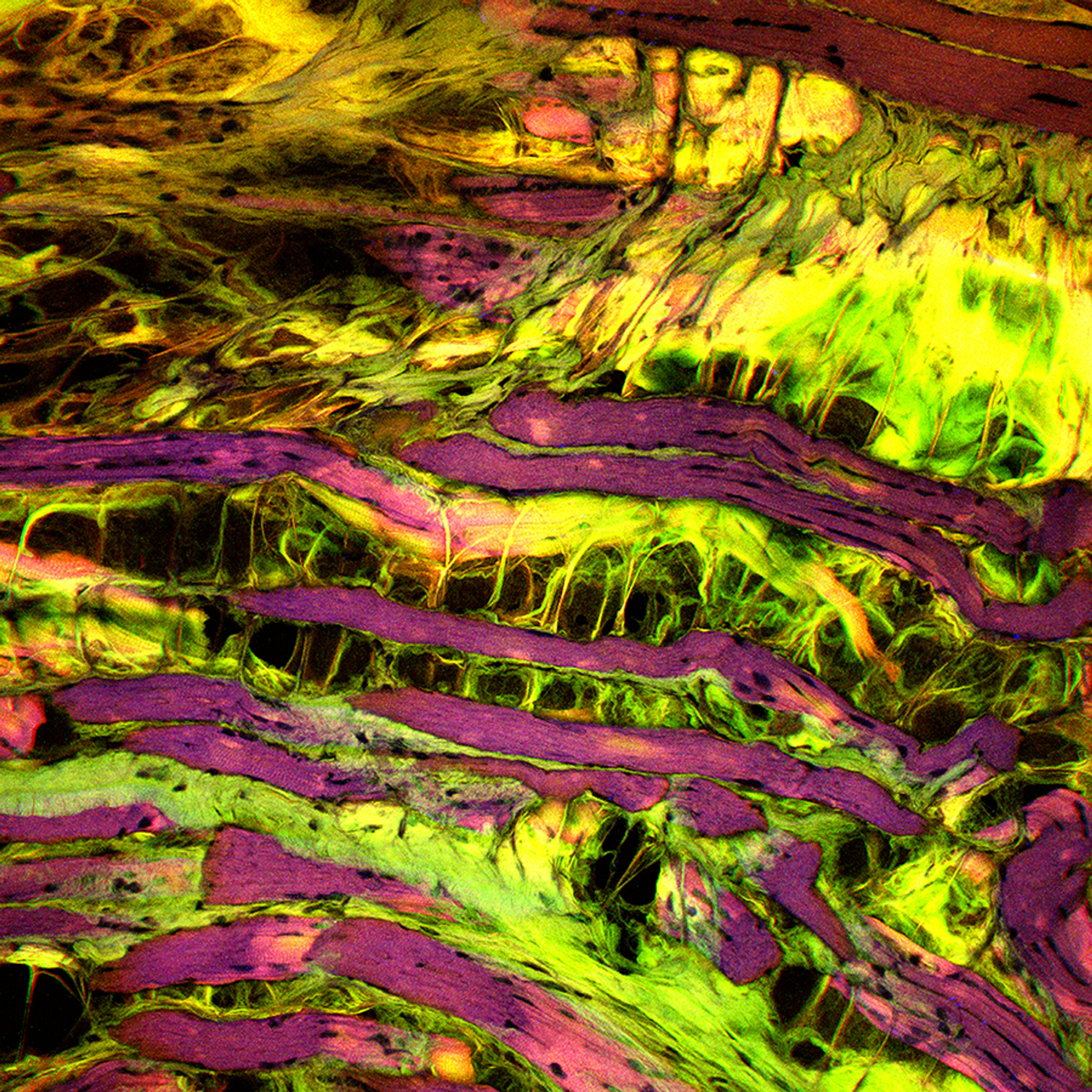 Gene Editing Could One Day Treat Muscle Disorders