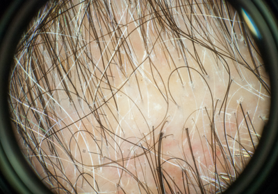 Synthetic Sandalwood Maintains Hair Growth in Human Tissue