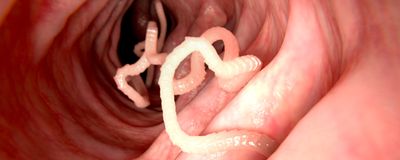 Researchers Analyze Genomes of 81 Parasitic Worm Species