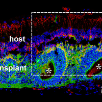 Image of the Day: Retinal Transplant