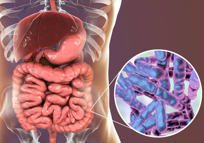 Fecal Transplant Heals Colitis Caused by Immunotherapy | The