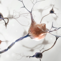 Parkinson's Patient Transplanted with Neurons Derived from iPSCs