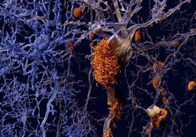 Alzheimer's-Related Protein Can Spread by Tainted Growth Hormone