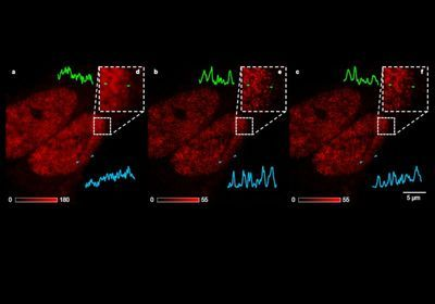 AI Networks Generate Super-Resolution from Basic Microscopy