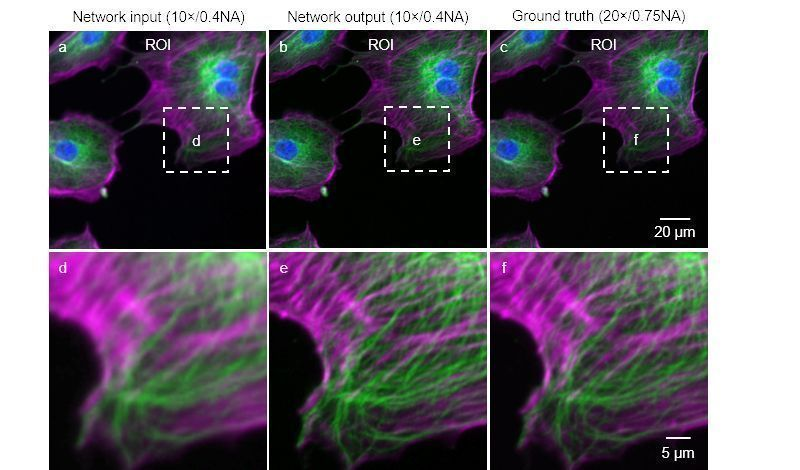 AI Networks Generate Super-Resolution from Basic Microscopy | The