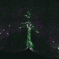 Serotonin Neurons Implicated in SIDS