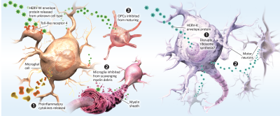 Infographic: Human Endogenous Retroviruses and Disease
