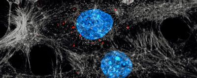 Exosomes Linked to Cancer Spread from Chemoresistant Tumors in Mice