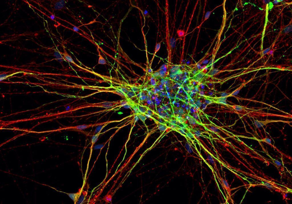 Brains Of People With Autism Spectrum >> Stem Cell Derived Neurons From People With Autism Grow Differently
